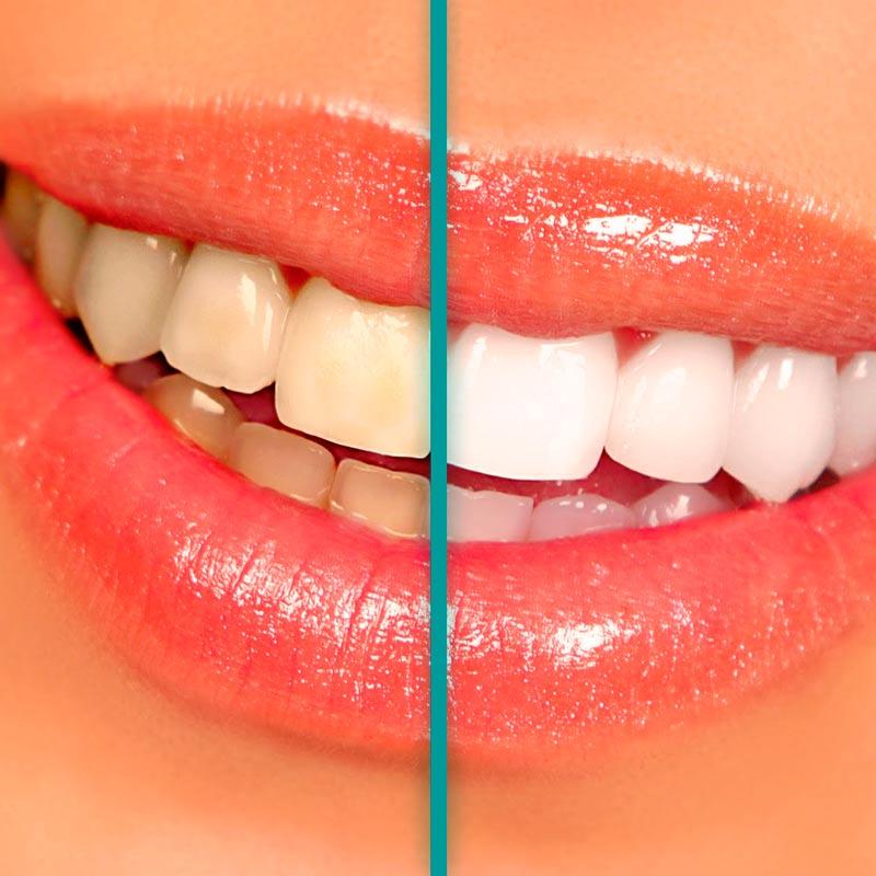 Blanqueamiento antes y después - Tratamientos