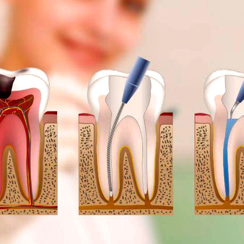 Endodoncia - Tratamientos