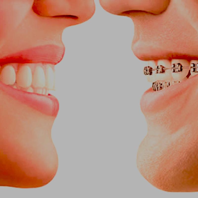 Ortodoncia - Tratamientos